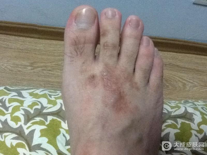 脚气有哪些症状表现