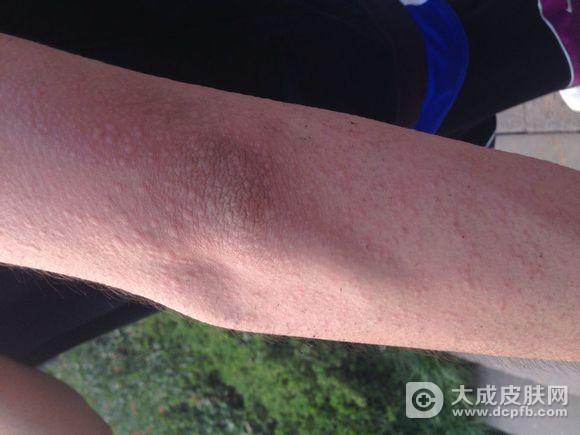 春季高发荨麻疹 你了解原因吗
