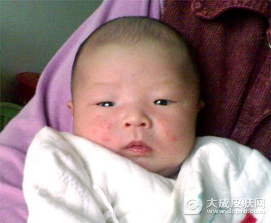 如何预防与治疗婴幼儿湿疹