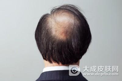 改善脱发的方法有哪些