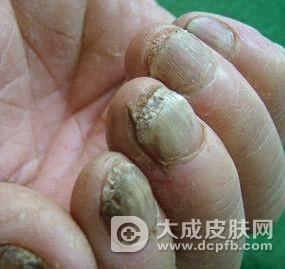 灰指甲为什么会增厚