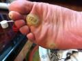 脚部跖疣的治疗护理方法