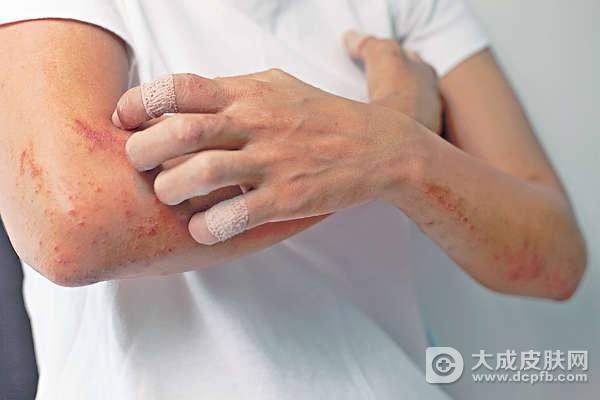 急性湿疹是什么样的怎么治疗