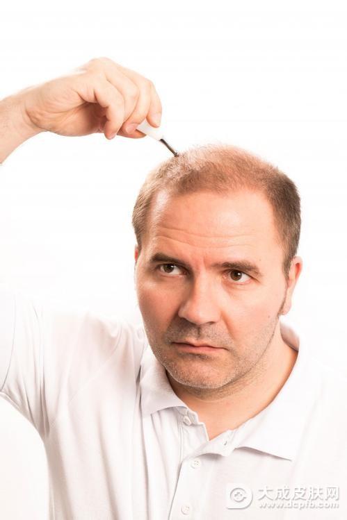 头部老是出油有什么方法可以改善