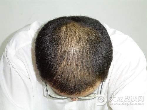 脱发要怎么改善
