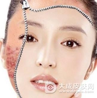 脸上的痘印怎么办