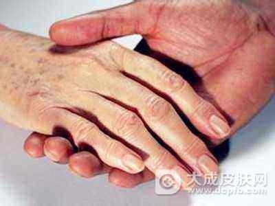 怎么预防老年斑