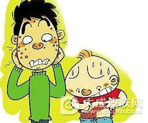 水痘和带状疱疹有区别吗