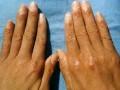 皮肌炎是怎么造成的