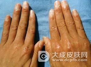 皮肌炎的治疗