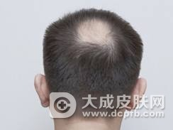 斑秃的病因及治疗
