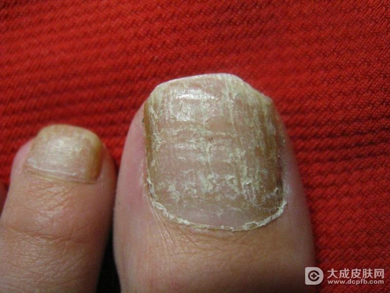 灰指甲的早期症状表现