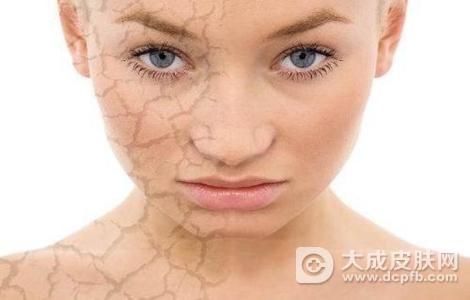 脸上干燥起干皮怎么改善