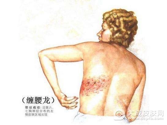 带状疱疹的病因