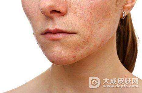成人脸部长了湿疹怎么办