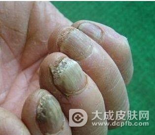灰指甲的防与治