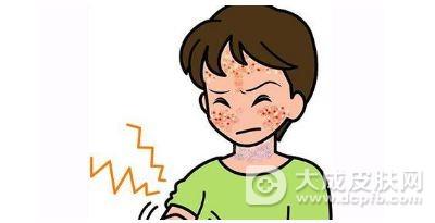 夏季皮炎的症状及预防