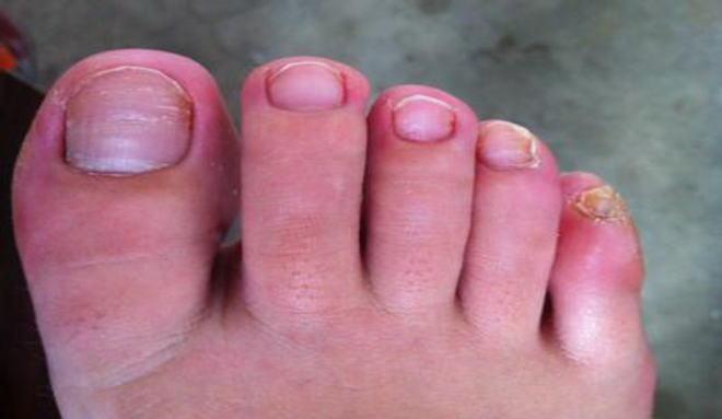灰指甲症状图集