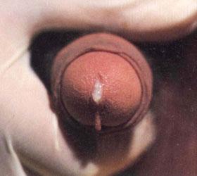 非淋菌性尿道炎图集