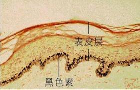 皮肤涂片显微镜检查