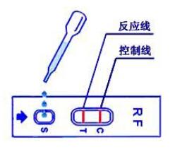 类风湿因子(RF)