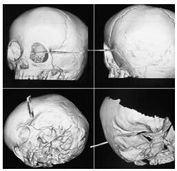 颅脑CT检查