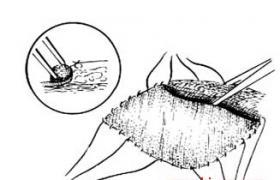 人工皮片移植术