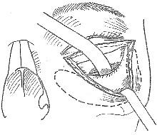 眼眶内容物剜出术伴治疗性眶骨去除术