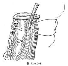 腹壁造口术