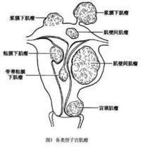 腹腔镜下子宫肌壁妊娠去除术