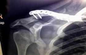 肩胛骨骨折切开复位螺钉内固定术