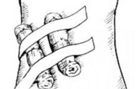皮管预制术