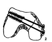 膝关节内固定物取出术