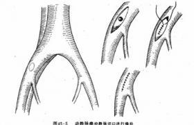 动静脉瘘切断术