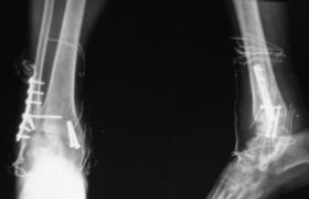肩胛骨骨折切开复位钢板内固定术