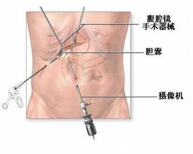 腹腔镜下单侧输卵管切除术