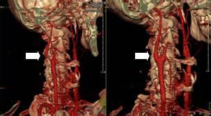 血栓动脉内膜切除术