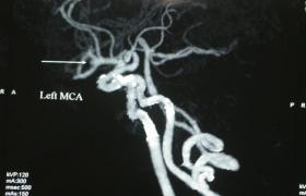 动脉瘤包裹术