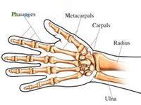 腕关节假体取出术