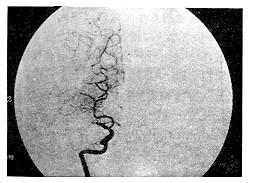 经皮血管腔内成形术