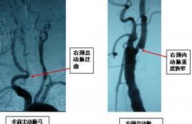 颈动静脉瘘栓塞术