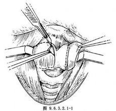 面骨骨全部切除伴重建术