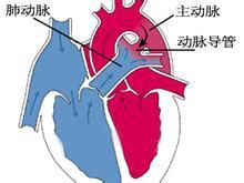 动脉导管未闭堵塞术