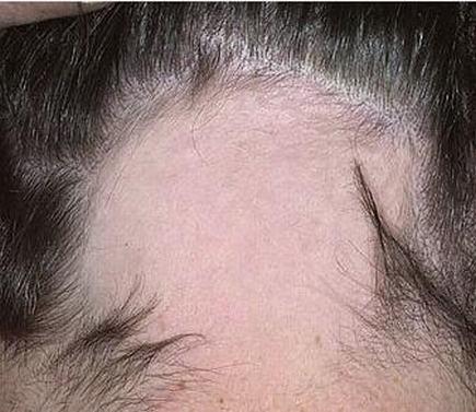 斑秃临床症状主要有哪些
