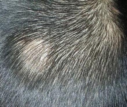 斑秃是免疫性疾病吗