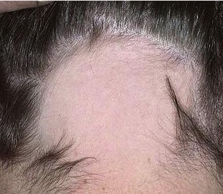 斑秃一般表现为那些类型