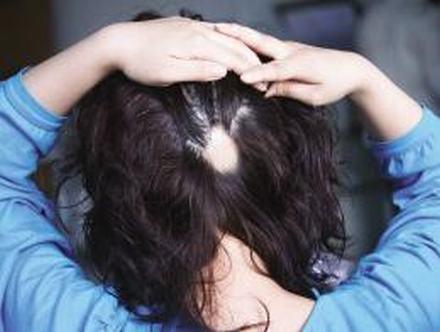 斑秃症状表现详解