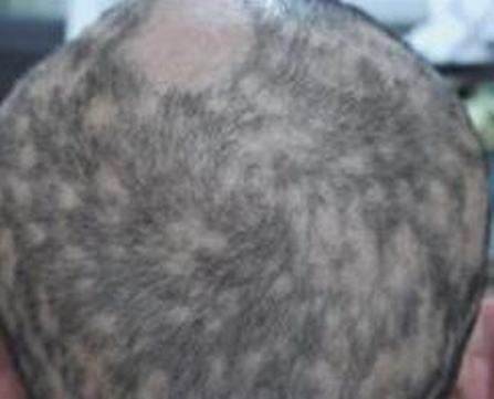 关于斑秃怎么治疗_斑秃