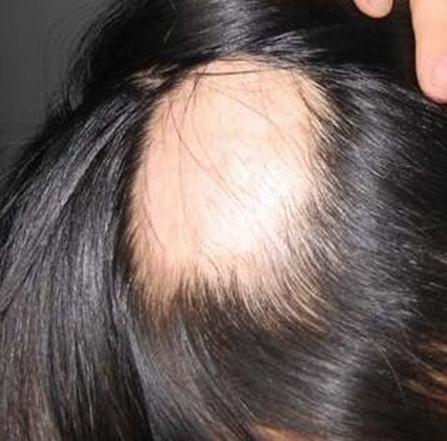 治斑秃费用贵吗