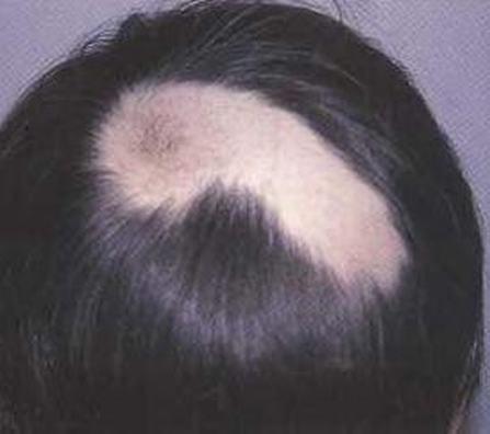 治斑秃主要措施是什么